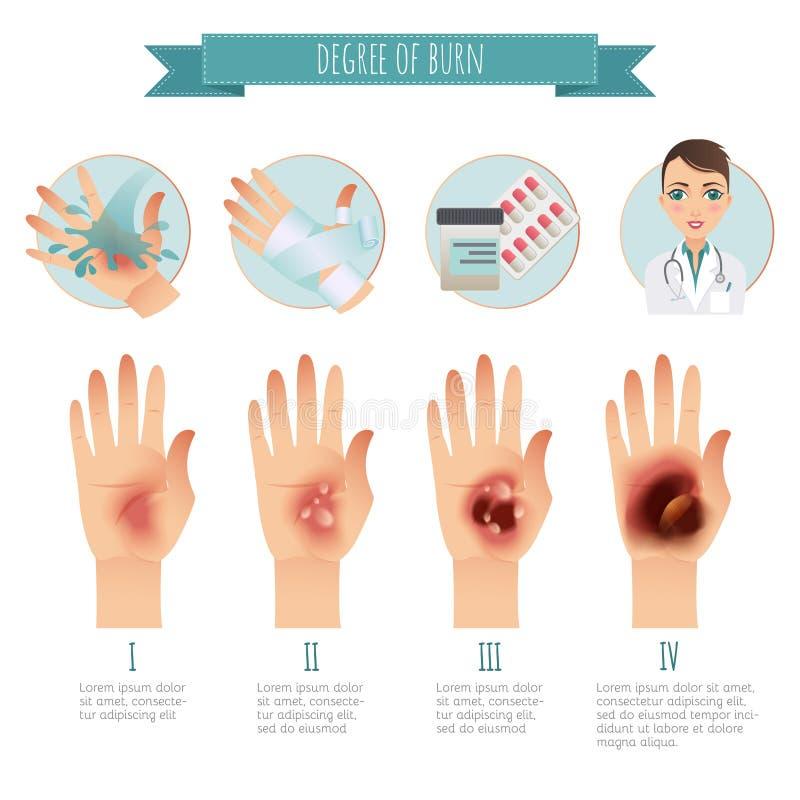 Brännskadabehandling Grad av hudbrännskador Infographic vektor Plan illustration för websites, broschyrer, tidskrifter etc. stock illustrationer