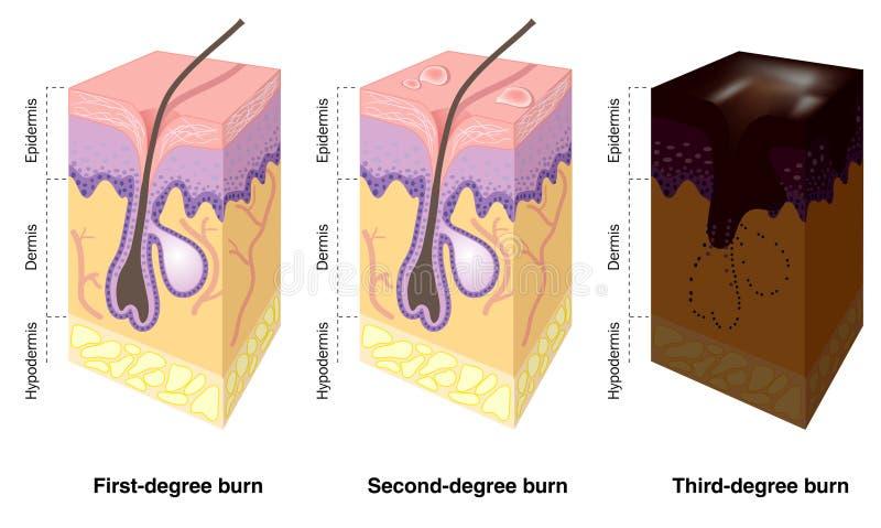 brännskador som märks hud royaltyfri illustrationer