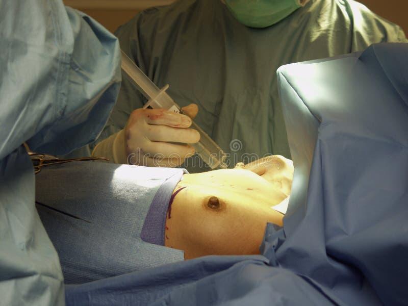 Download Bröst Som Injicerar Salthaltig Kirurgkirurgi Arkivfoto - Bild av snitt, handske: 235358