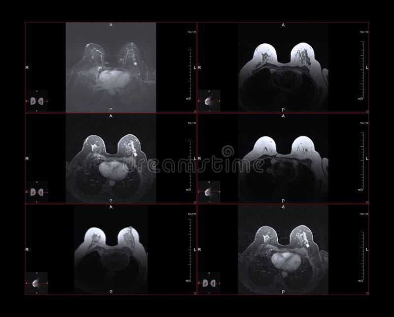 Bröstcancer MRI royaltyfri fotografi