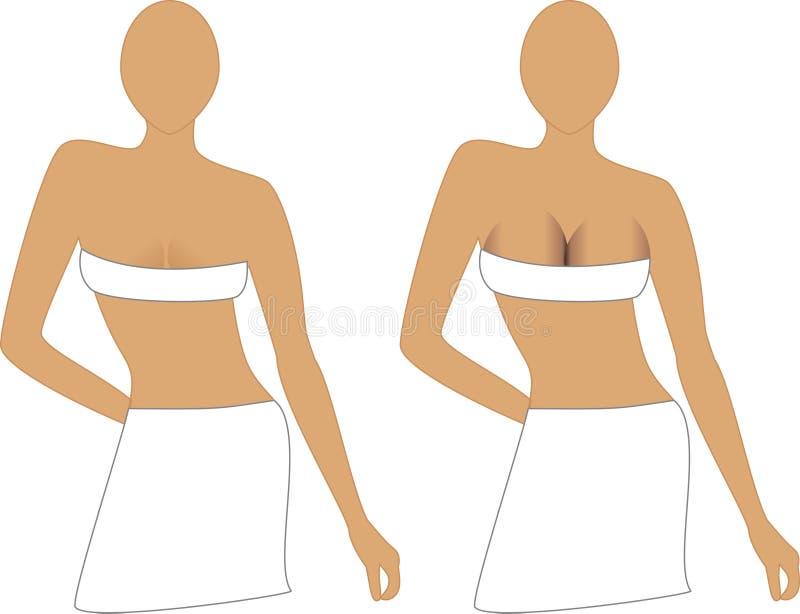 bröstimplantat stock illustrationer