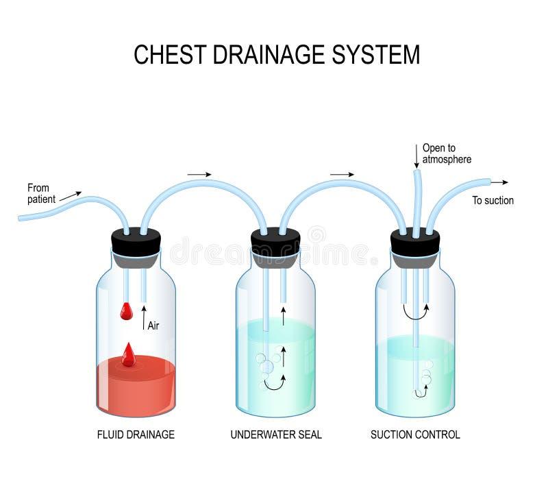 Bröstkorgdräneringsystem royaltyfri illustrationer