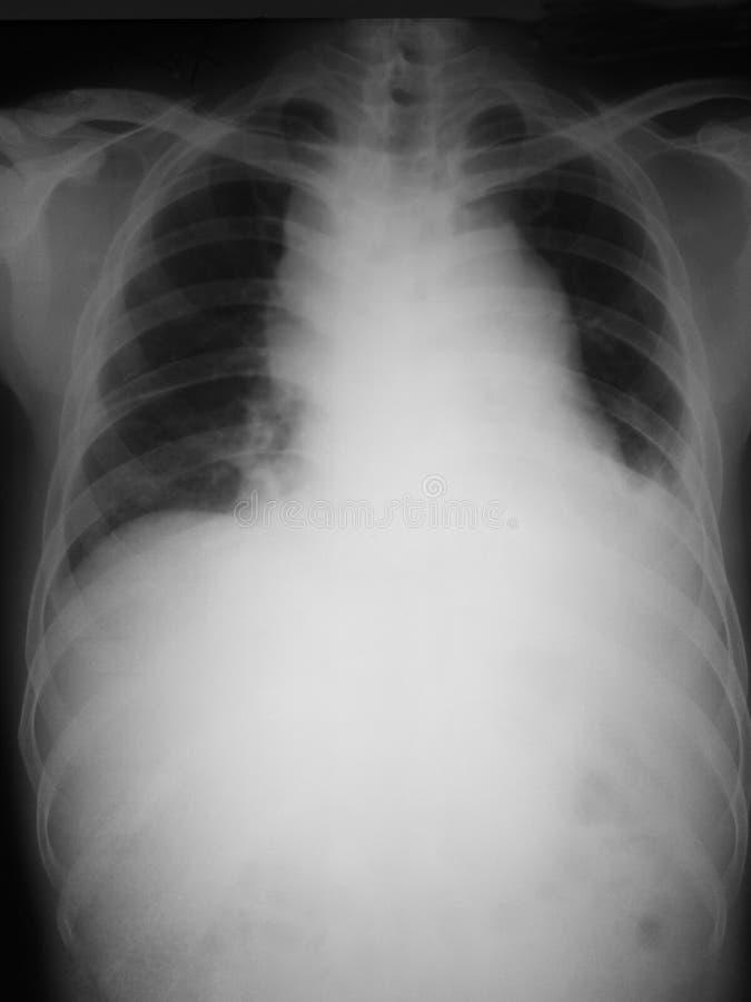 Bröstkorgen filmar antero-bakdelen (AP) beskådar av en 21 år gamal man, samlas visade mediastinal, och att avtrubba av lämnat cost royaltyfria foton