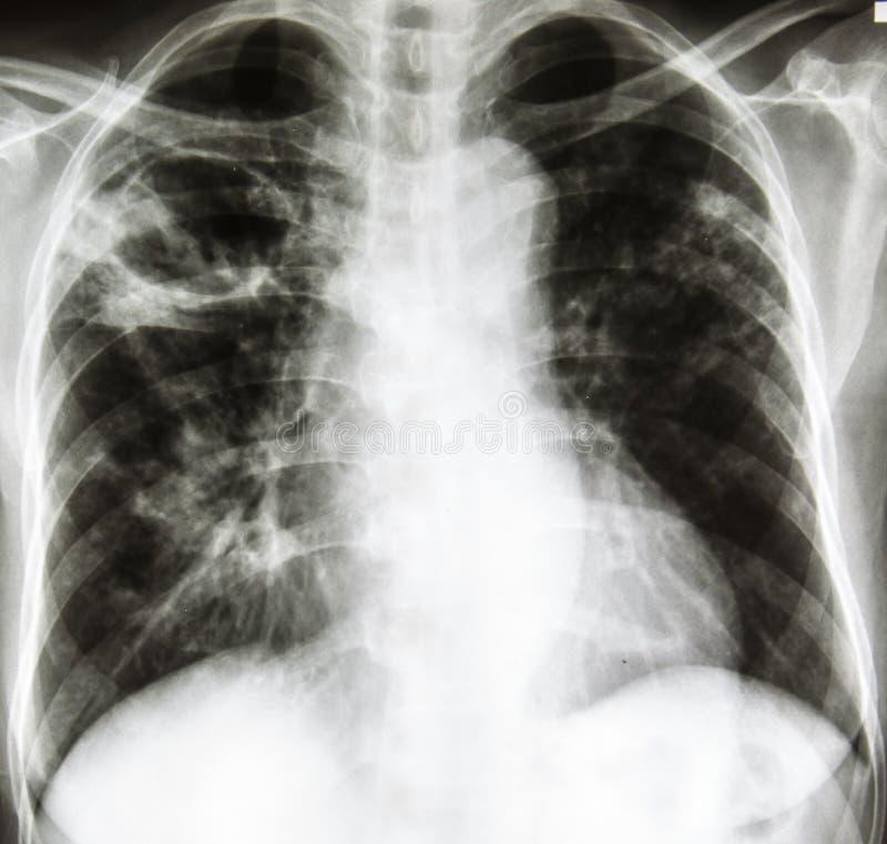 Bröstkorgröntgenfotografering royaltyfri fotografi