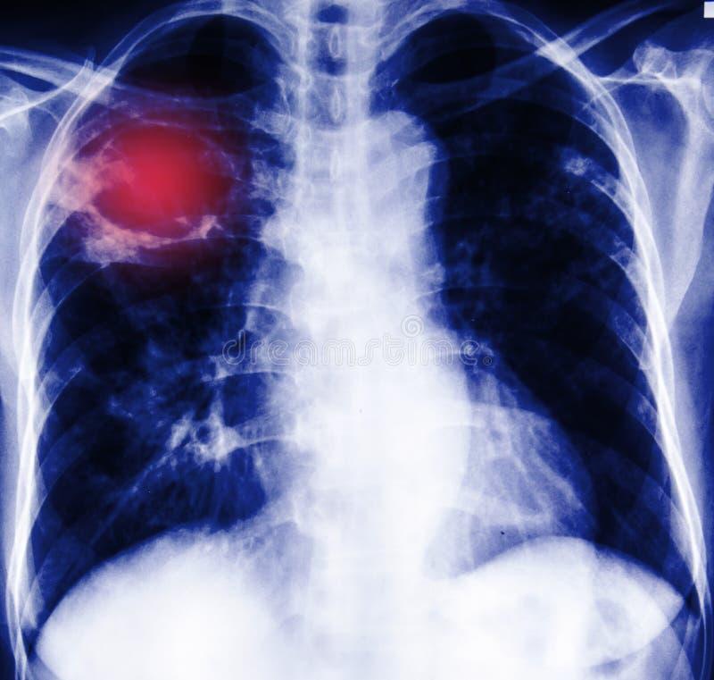 Bröstkorgröntgenfotografering royaltyfri bild