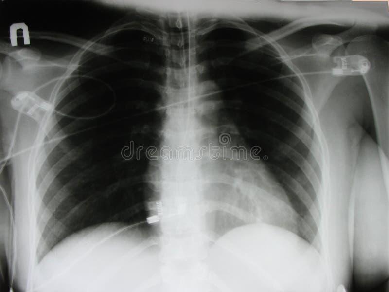 bröstkorgröntgenstråle royaltyfri illustrationer
