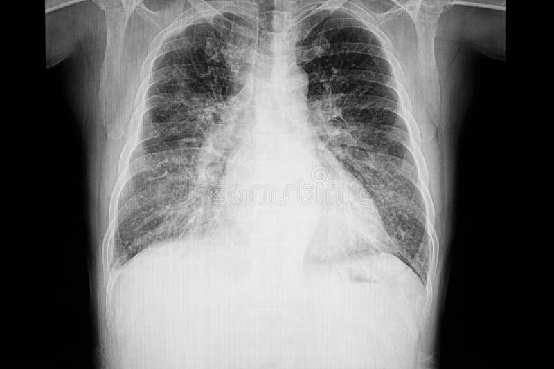 bröstkorgröntgenstrålefilm av en patient med cardiomegaly royaltyfria bilder