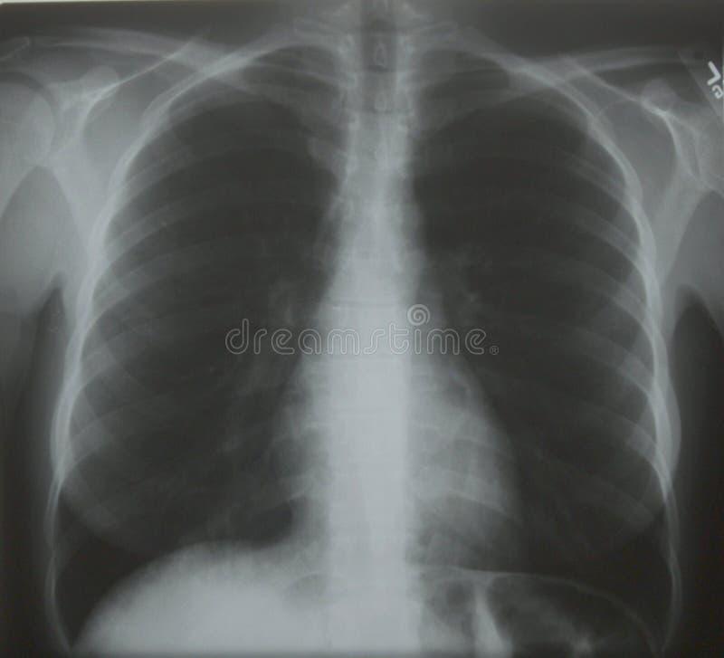 bröstkorgstråle x arkivfoton