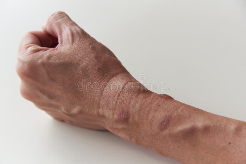 Brûlage au deuxième degré à l'avant-bras gauche et au poignet photo libre de droits