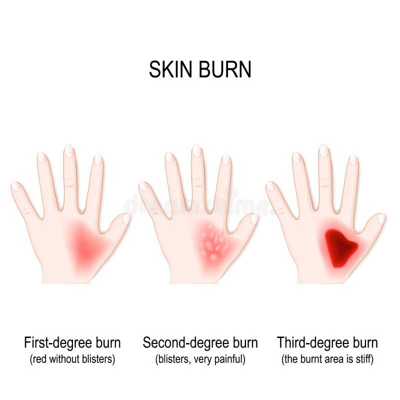 Brûlures de degré de peau étape de brûlure illustration libre de droits