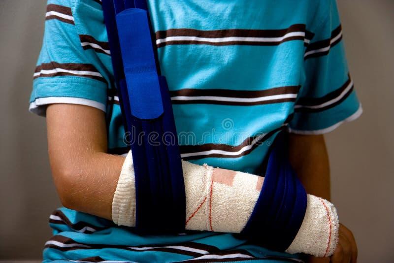 Braço ferido em um estilingue fotografia de stock royalty free