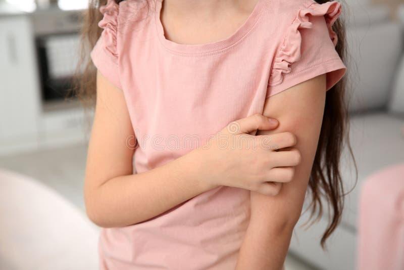 Braccio di scratch della bambina a casa, primo piano immagine stock libera da diritti
