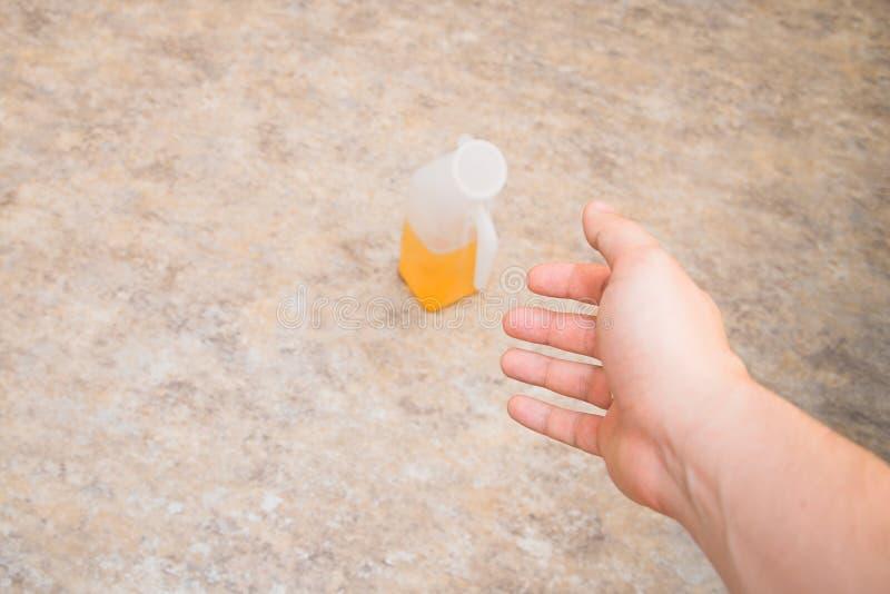 Braccio paziente del ` s allungato al ricevitore dell'urina immagini stock