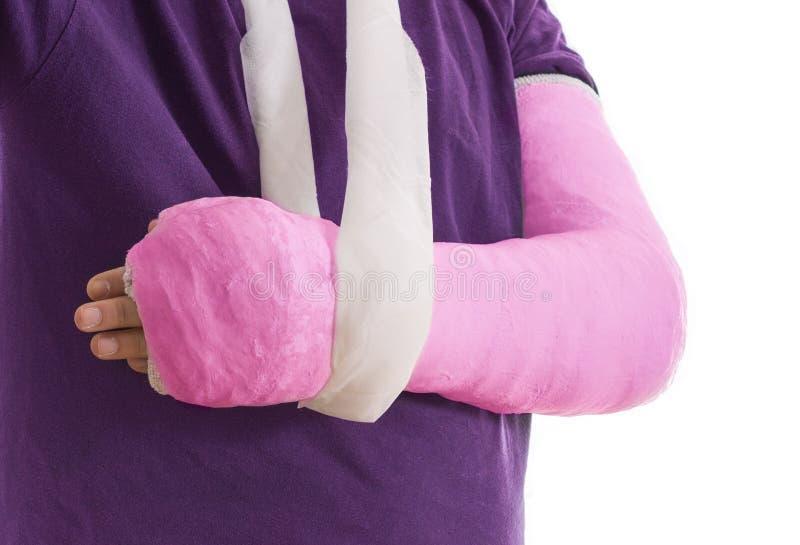 Braccio rotto in gesso ed imbracatura rosa fotografia stock