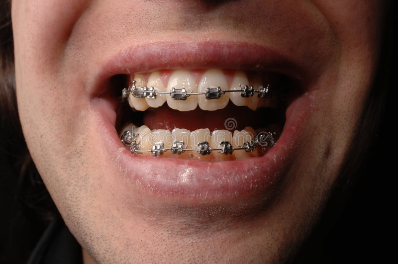 Download Braces Stock Image - Image: 2779401