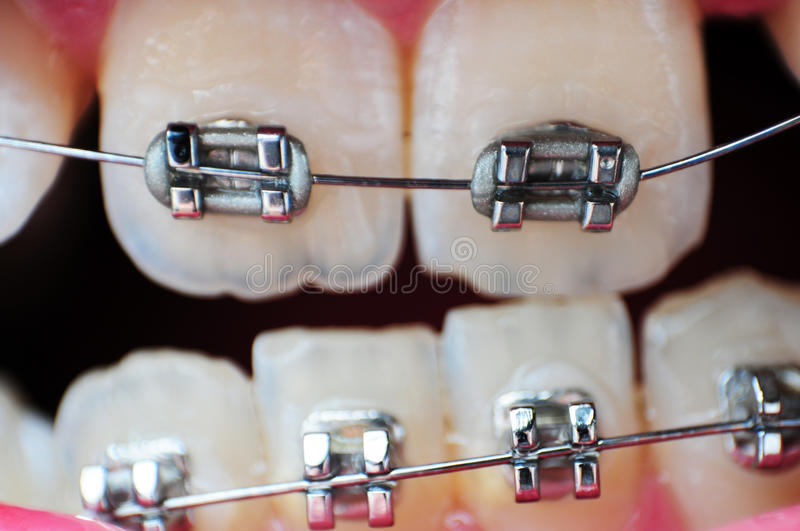 Braces Closeup. This image is a closeup of crooked unaligned teeth with braces on them stock photography