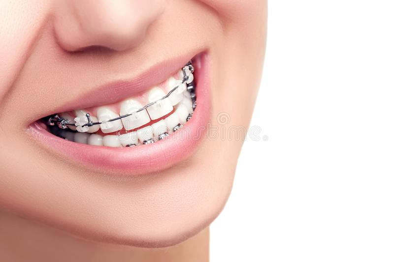 Braces. Orthodontic Dental Care Concept. royalty free stock image