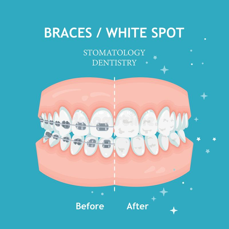 Braces poster. White spots. Stomatology dentistry vector royalty free illustration
