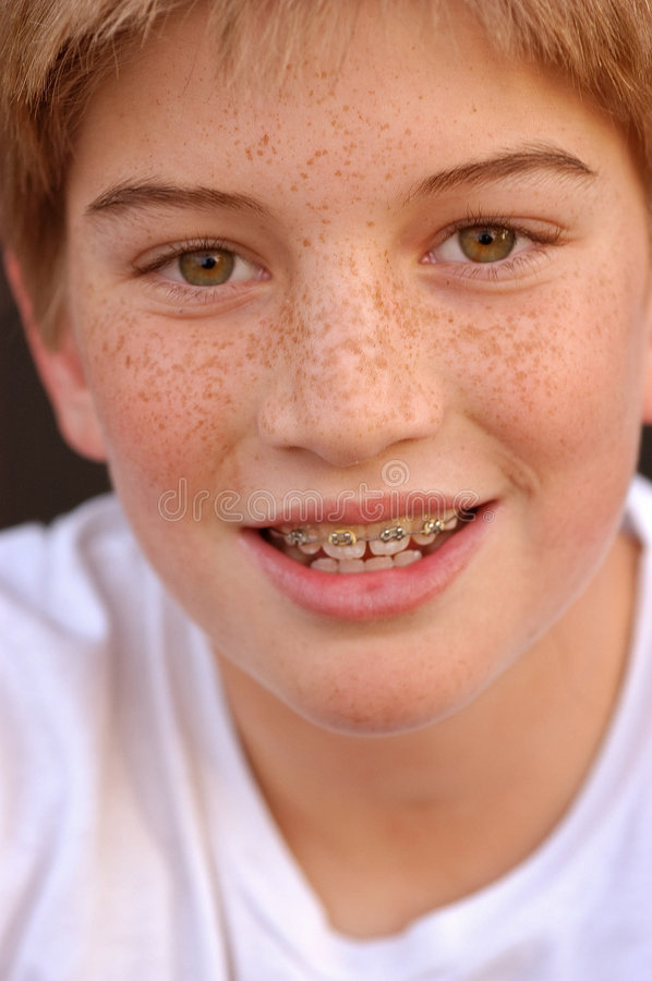 Braces With Smile royalty free stock photos