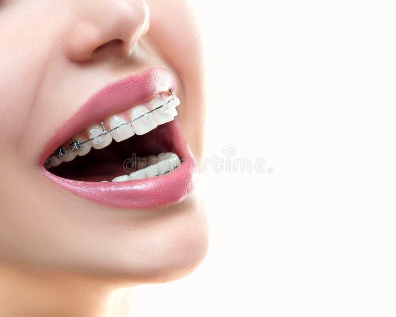 braces teeth Οδοντικό χαμόγελο στηριγμάτων orthodontic επεξεργασία στοκ φωτογραφίες