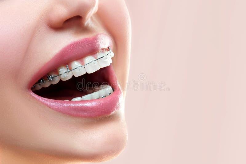 braces teeth Οδοντικό χαμόγελο στηριγμάτων orthodontic επεξεργασία στοκ φωτογραφία