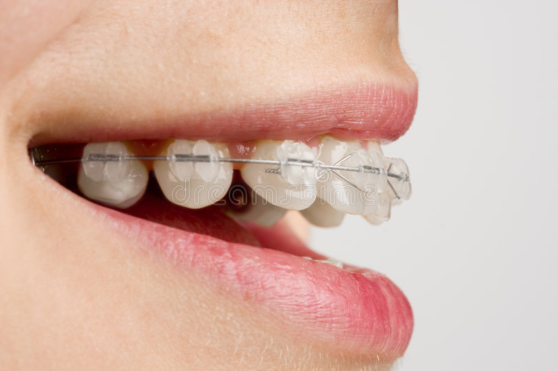 Download Braces on teeth stock photo. Image of orthodontia, grin - 8711530