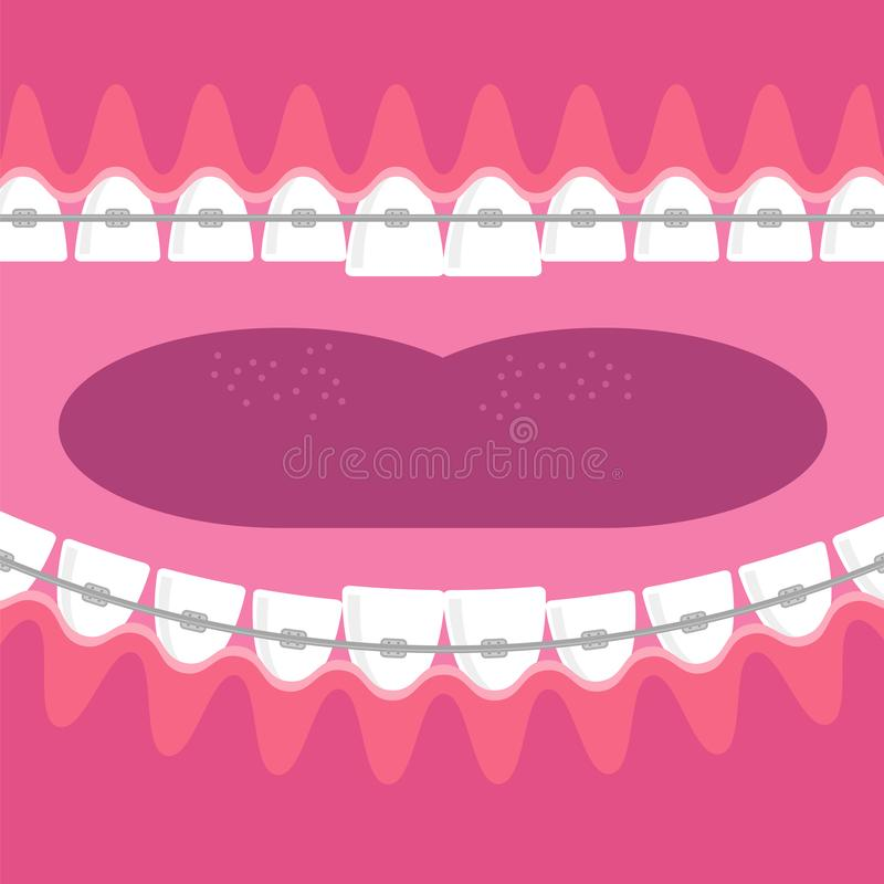Braces Teeth. Dental Care Background. Orthodontic Treatment. Cartoon Opening Mouth. vector illustration