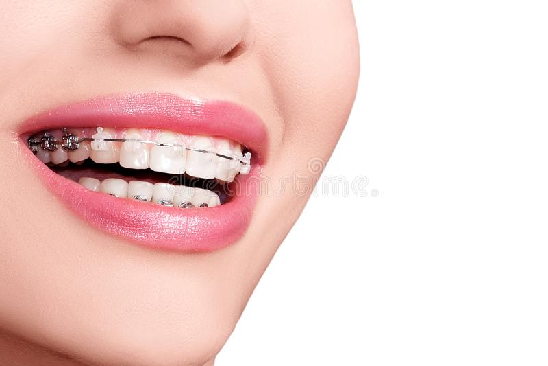 Braces on Teeth. Dental Braces Smile. Orthodontic Treatment. royalty free stock photos