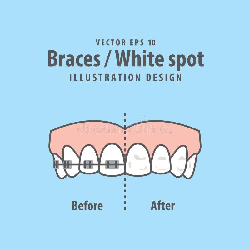 Braces-White spot illustration vector on blue background. Dental. Concept royalty free illustration