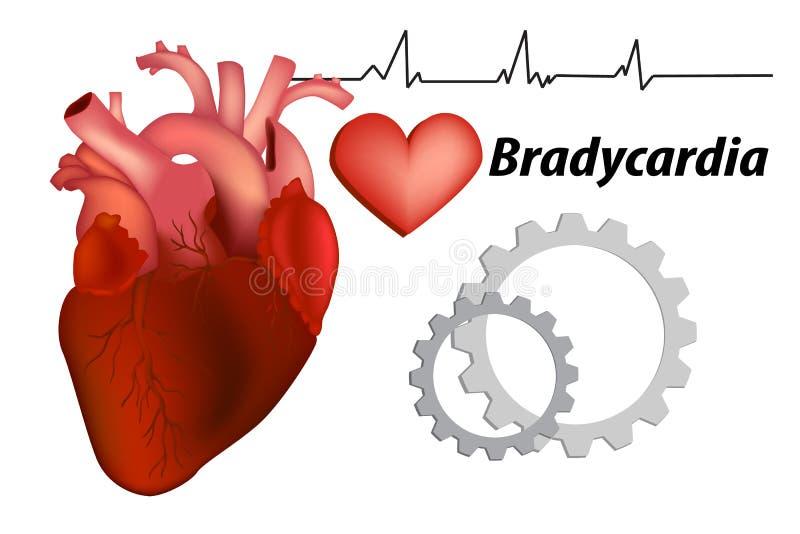Bradykardie Sinusbradykardie- und Krankkurve stock abbildung
