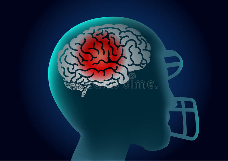 Brain of American football player have a red signal. vector illustration