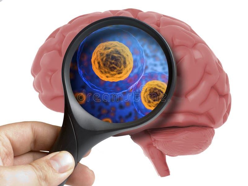 Brain Analyzed humano com o micróbio bacteriano de ampliação do vírus dentro do isolado fotos de stock royalty free