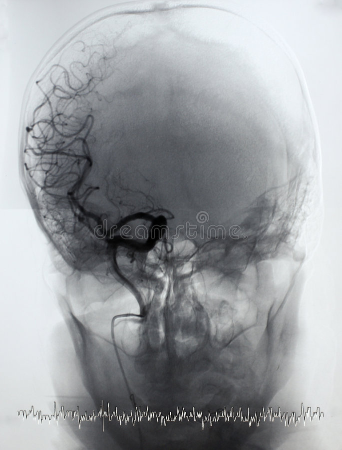 Brain angiography, arteriography stock photography