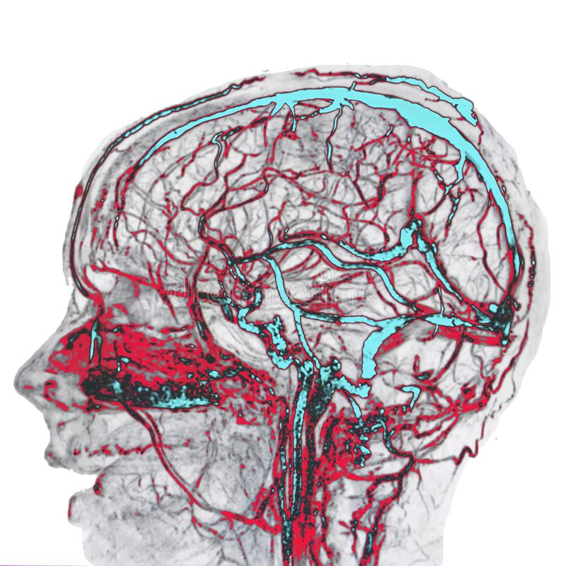Brain arteries and veins, MRI. Blue veins and red arteries, illustration stock photography