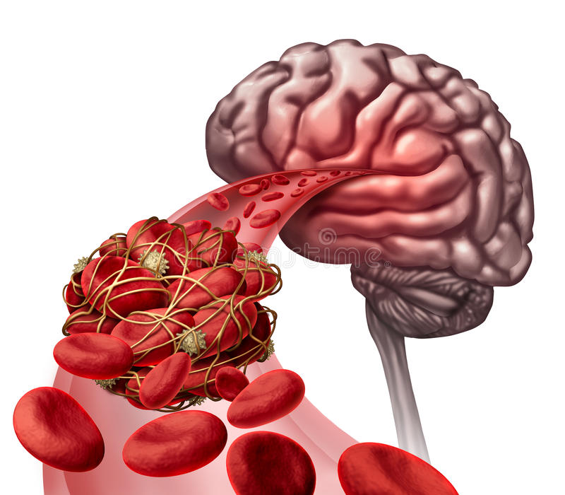 Brain Blood Clot. Medical concept as 3D illustration blood cells blocked by an artery blockage thrombus causing a blockage of blood flow to the neurology royalty free illustration