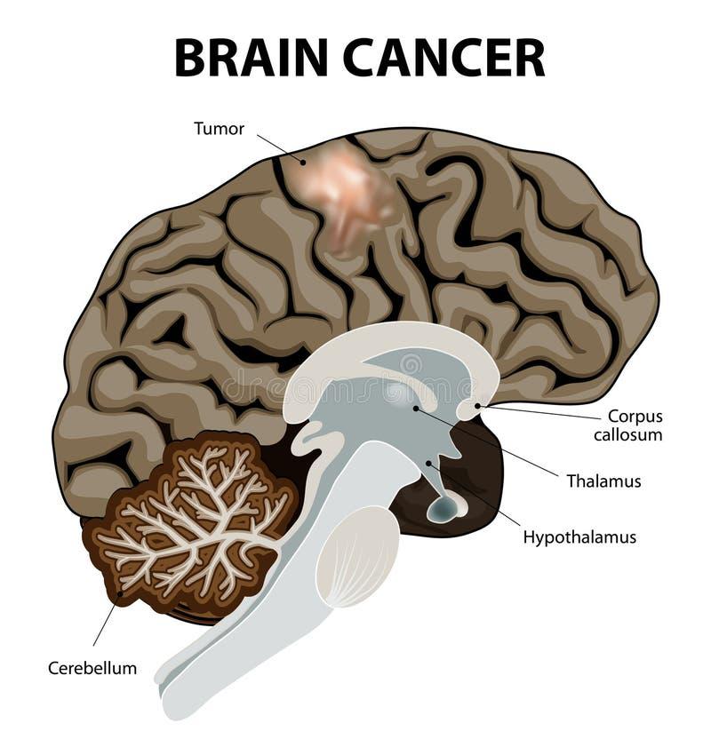 Brain Cancer illustration de vecteur