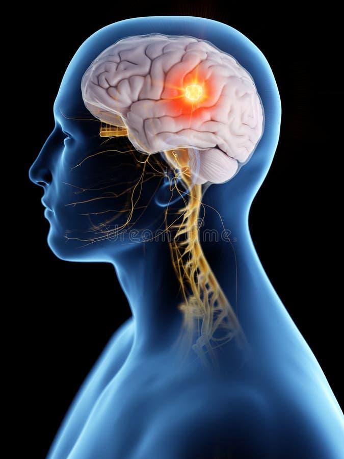 Brain Cancer royalty-vrije illustratie
