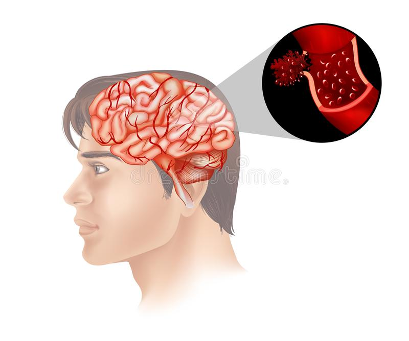 Brain cancer in human royalty free illustration