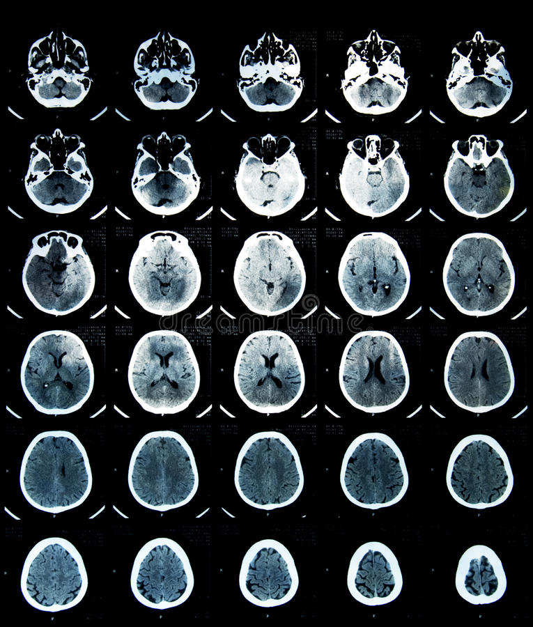 Free Brain CT Scan Royalty Free Stock Images - 15340269