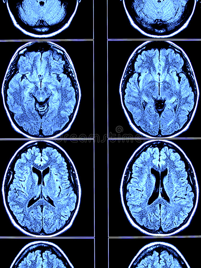 Free Brain CT Scan Royalty Free Stock Photo - 5107925