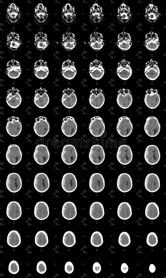 Brain CT showing intracranial bleeding stock photography