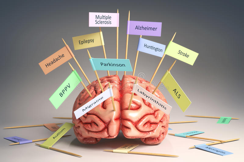 Brain Diseases illustration stock