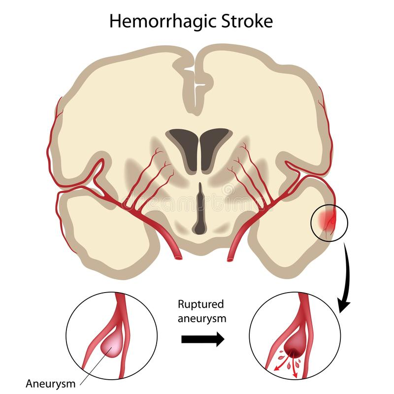 Brain hemorrhagic stroke vector illustration