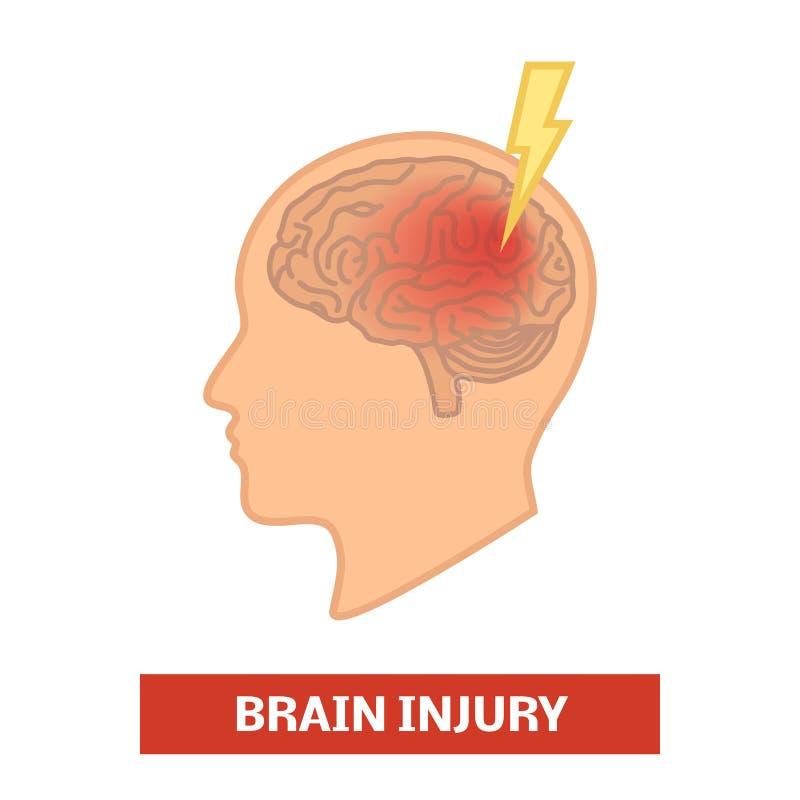 Brain injury concept. Simple cartoon illustration vector illustration