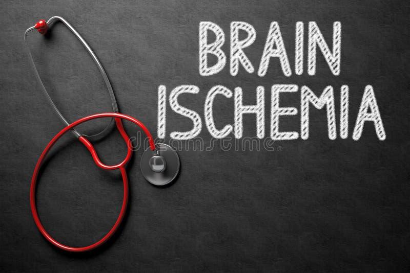 Brain Ischemia Handwritten auf Tafel Abbildung 3D stockfotos