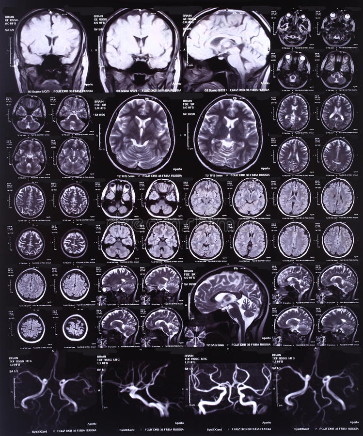 Brain MRI stock photo. Image of anatomy, healthcare, radioactive ...
