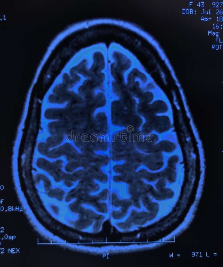 Brain MRI stock photography