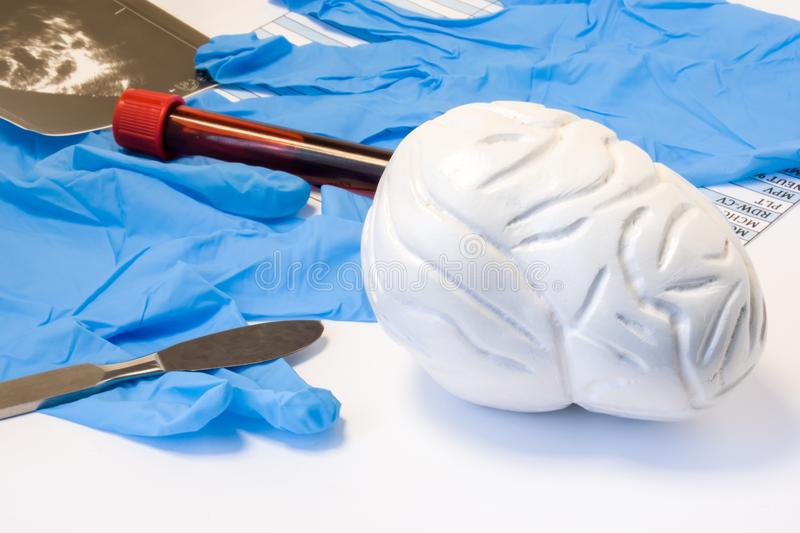 Brain and nervous surgery or neurosurgery concept. Model of brain near scalpel, ultrasound result, surgical gloves and blood test. Tube with blood result stock images