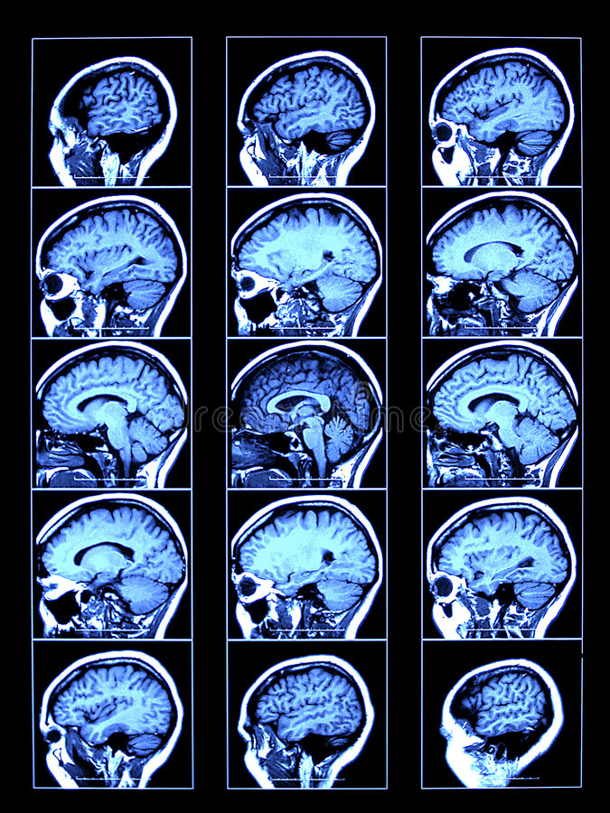 Brain Scan royalty free illustration