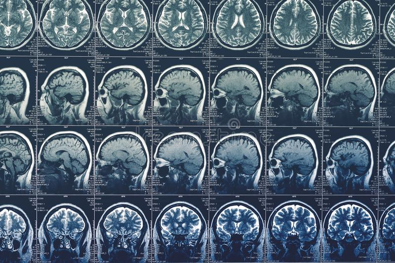 Brain scan, MRI or X-Ray or magnetic resonance image of head. Neurology tomography concept. Toned stock image